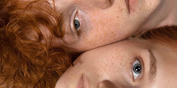 Die verschiedenen Formen von Pigmentstörungen: Von Hyperpigmentierung bis Vitiligo