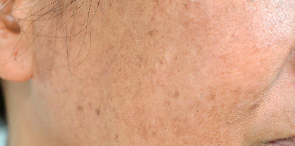 Die häufigsten Fragen bei Hyperpigmentierung und Pigmentstörung