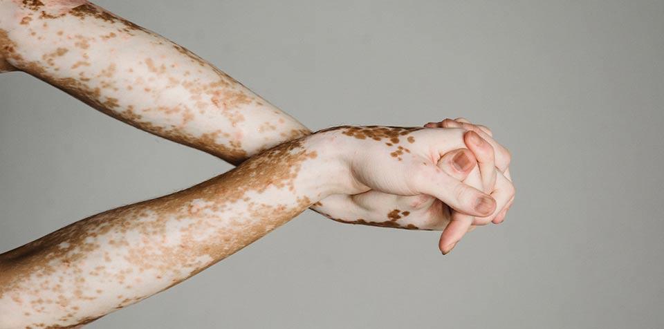 Weiße Flecken und dunkle Pigmentflecken auf der Haut
