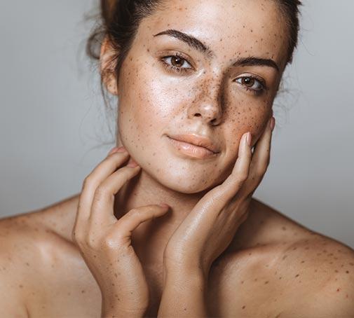 Tipps zur Behandlung von Pigmentflecken & Hyperpigmentierung