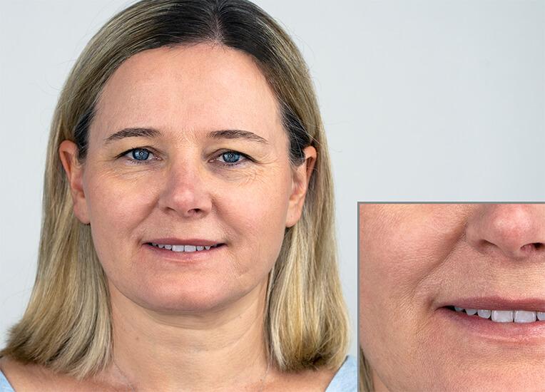 Hautbild vor der Ampullenkur