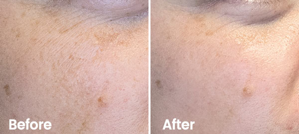 Result Hydrafacial Pigment spots