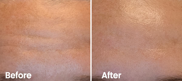 Reduce forehead wrinkles with hydrafacial treatment