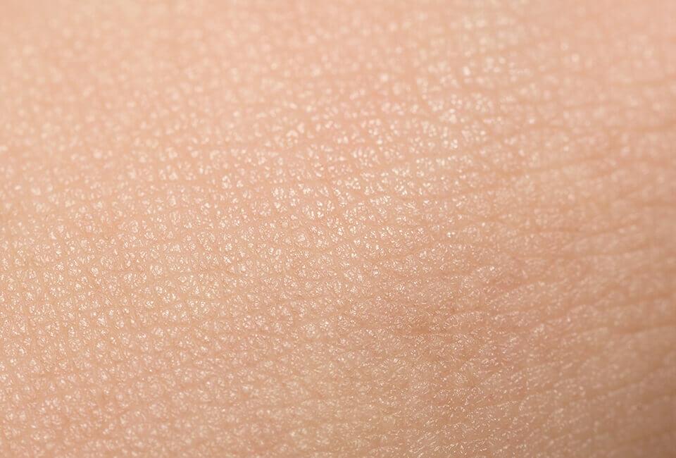 Wie altert die Haut?