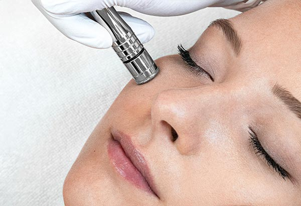DMA100 Microdermabrasion treatment