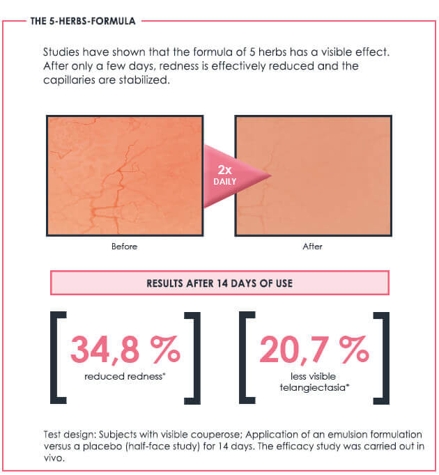 Impressive test results Redness Control Couperose collection