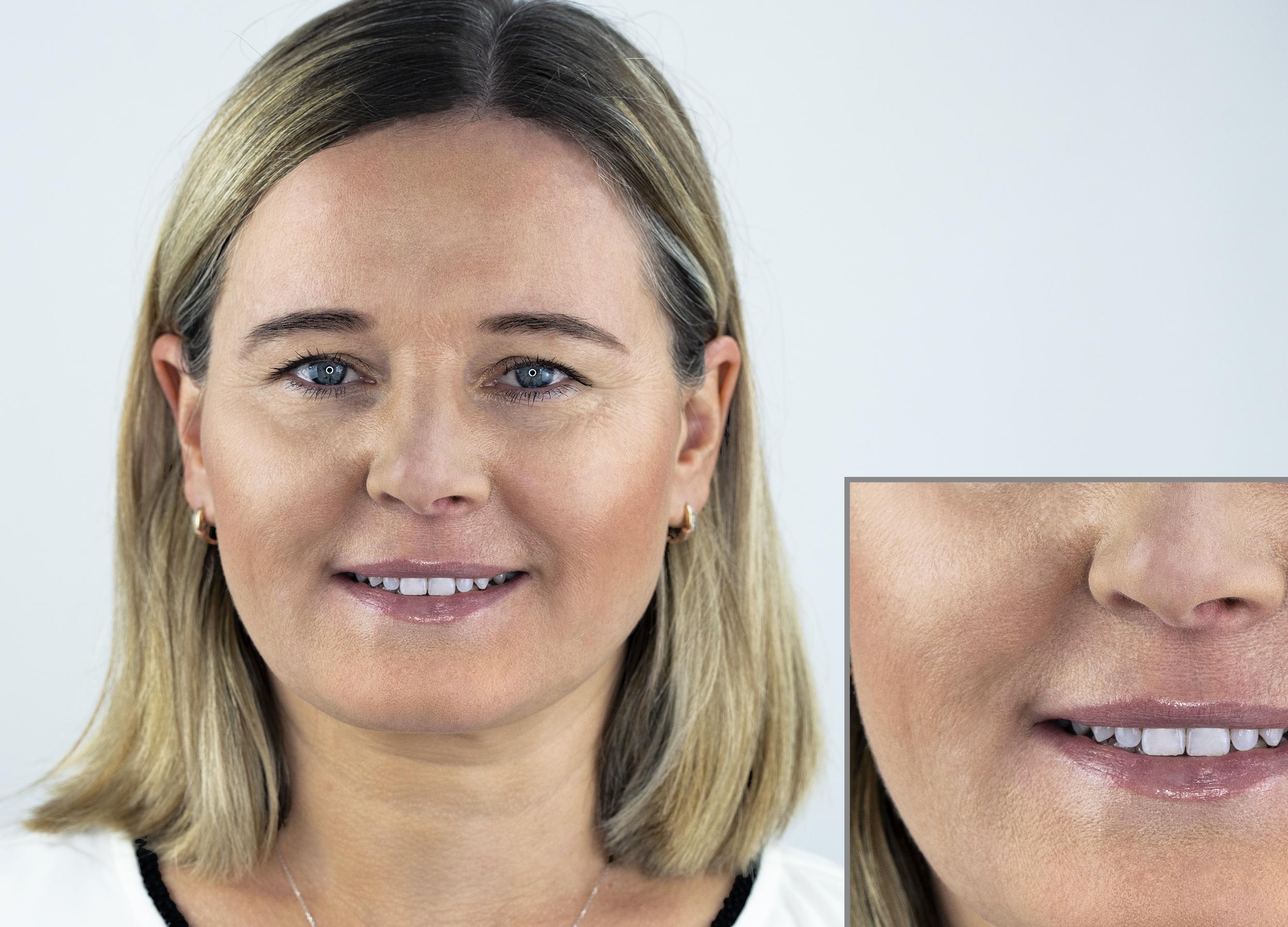 Hautbild nach der Ampullenkur