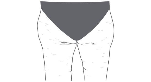 Cellulite loswerden
