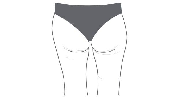 Cellulite Stadien