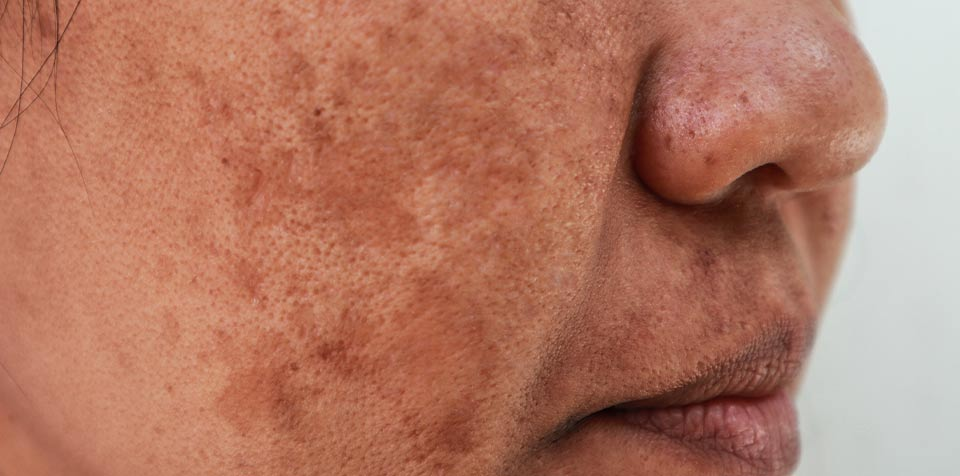 Melasma – causes and treatments