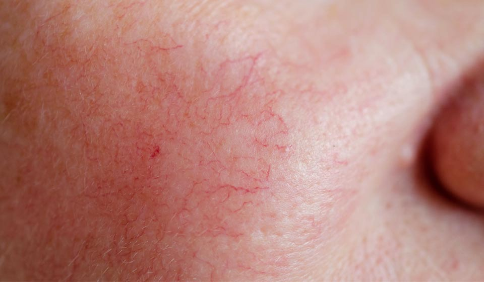 How to treat rosacea