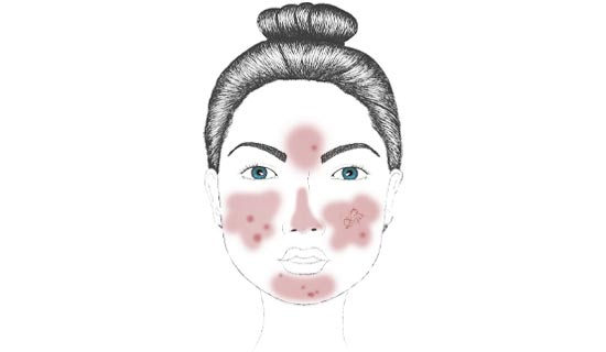 Rosacea subtype one