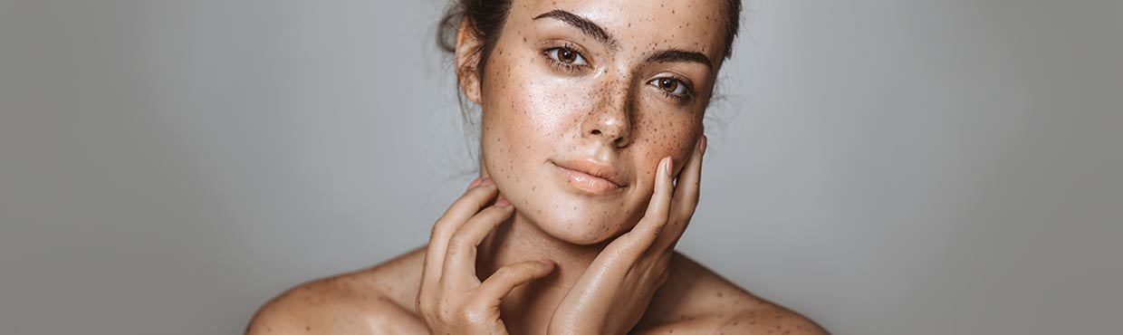 Remove dark spots, age spots, hyperpigmentation and post-acne marks