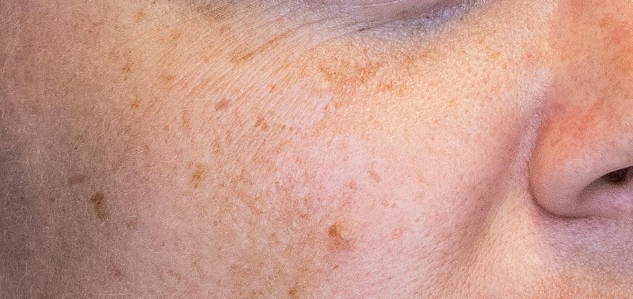 Skin Pigmentation Disorders